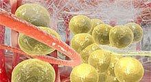 Лечение целлюлита, липомоделирование, безоперационные липосакции, VelaShape, услуги, в Киеве, Украина