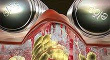Лечение целлюлита, безоперационная липосакция, липомоделировани,  VelaShape