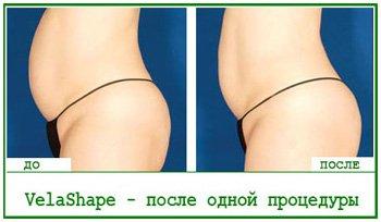 Похудеть на VelaShape